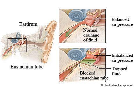 Clogged eustachian tube
