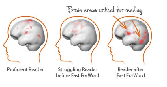 Brain Dyslexia Fast Forword